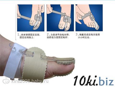 Лечение косточки на ногах
