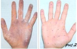 Фото Косметология, Ботулинотерапия, Диспорт (Франция, Ипсен) 6.3 Коррекция гипергидроза