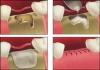 Остеопластические материалы