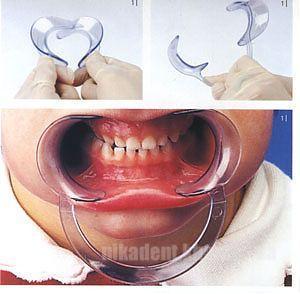 Фото Для стоматологических клиник, Аксессуары Ретрактор губной - роторасширитель для взрослых (большой)
