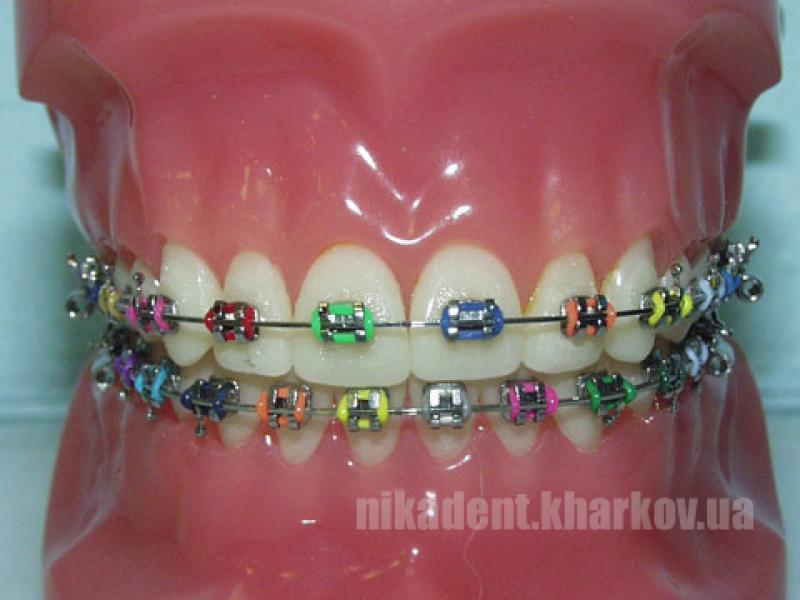 Фото Для стоматологических клиник, Ортодонтия, Брекет-системы Эластические лигатуры