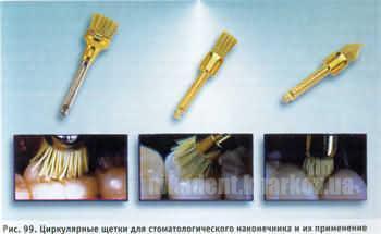 Фото Для стоматологических клиник, Полировочные системы Щетка угл. натуральная наполненная абразивом Stoddart (1шт)