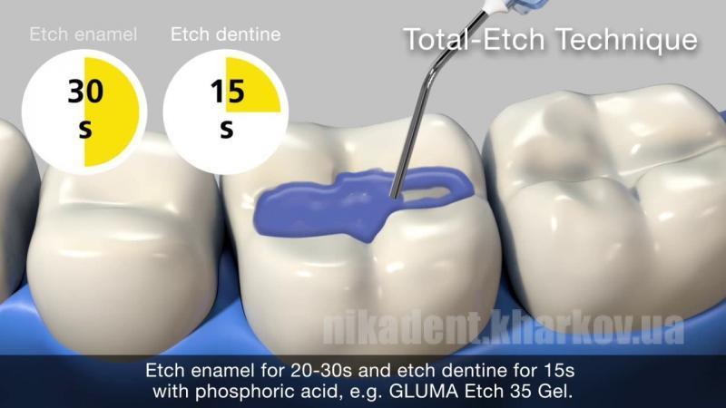 Фото Для стоматологических клиник, Материалы, Бондинговые системы Gluma Etch 35 Gel, гель травильный, шприц 2.5 мл