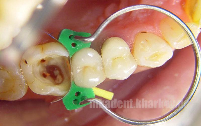 Фото Для стоматологических клиник, Аксессуары, Матричные системы и клинья 1.861 Клинья-насадка (40 шт)