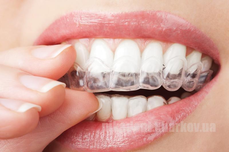 Фото Для стоматологических клиник, Материалы, Лечебные и профилактические материалы Zuremin-CaPF (Зуремин-CaPF - Двухкомпонентный гель для реминерализации зубов)