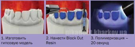 Фото Для стоматологических клиник, Материалы, Оттискные материалы Block out resin - (Блок аут рейсн - смола для создания резервуара в капе) 1.2г