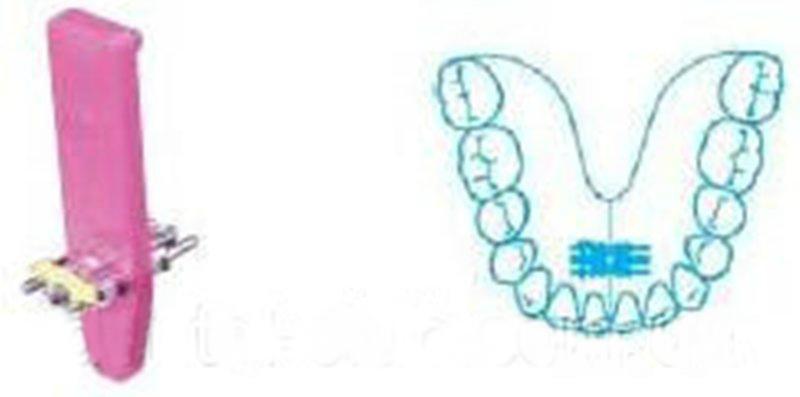 Универсальный винт на верхнюю и нижнюю челюсти LEONE (ЛЕОНЕ) А0890-11