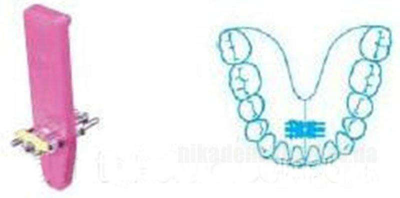Фото Для стоматологических клиник, Ортодонтия, Винты ортодонтические Универсальный винт на верхнюю и нижнюю челюсти LEONE (ЛЕОНЕ) А0890-11