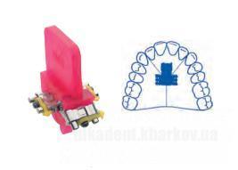Фото Для стоматологических клиник, Ортодонтия, Винты ортодонтические Винт трехсторонний по Бертони с 3-мя  направляющими (Leone) А0930-14