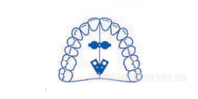 Фото Для стоматологических клиник, Ортодонтия, Винты ортодонтические Винт Leone A0815-14 - симметричный веерообразный, двухкомпонентный для верхней челюсти