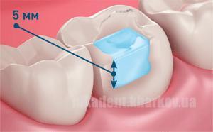 Фото Для стоматологических клиник, Материалы, Цементы Jen-Radiance Molar U - (Джен-Радианс Моляр) - высоконаполненный композит для жевательной группы зубов.