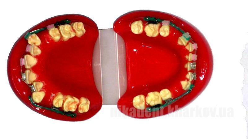 Фото Для стоматологических клиник, Аксессуары Модель челюсти с искривленным рядом зубов в брекетах